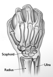 Scaphoid_medium