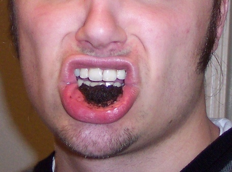 Dipping_tobacco_in_mouth_medium