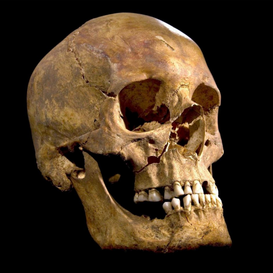 Richad_iii_skull_560