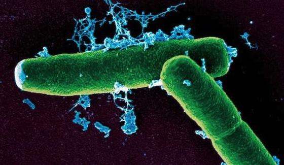Bacillus_anthracis_1-kenyon-college-microbe-wiki