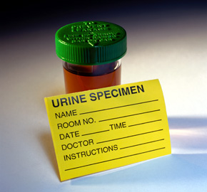 Urine_sample_pd_medium