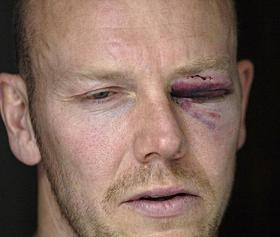 Mats_sundin_eye_medium
