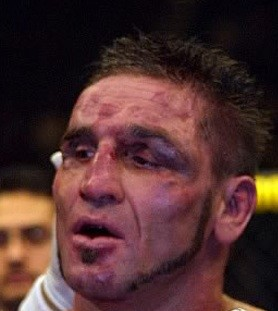 Ken Shamrock battered