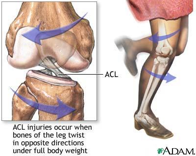 Acl-injury_medium