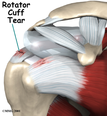 an analysis of rotator cuff Rotator cuff injuries are a common cause of shoulder pain in people of all age groups they represent a spectrum of disease, ranging from acute reversible tendinitis to massive tears involving the supraspinatus, infraspinatus, and subscapularis.