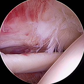 Partial_rotator_cuff_tear-1_medium