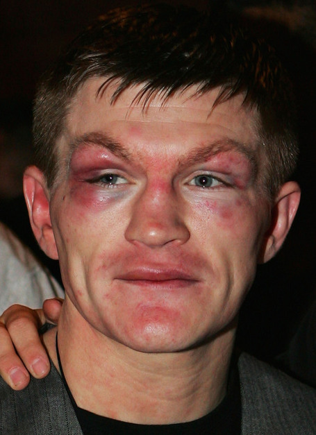 27efbe3d5d1c09da698467cc65a74591-getty-80927082ml010_ricky_hatton__medium