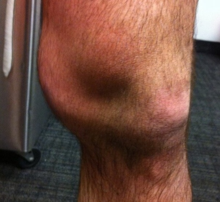 Ryan O Byrne S Knee Got Messed Up Against The Sharks